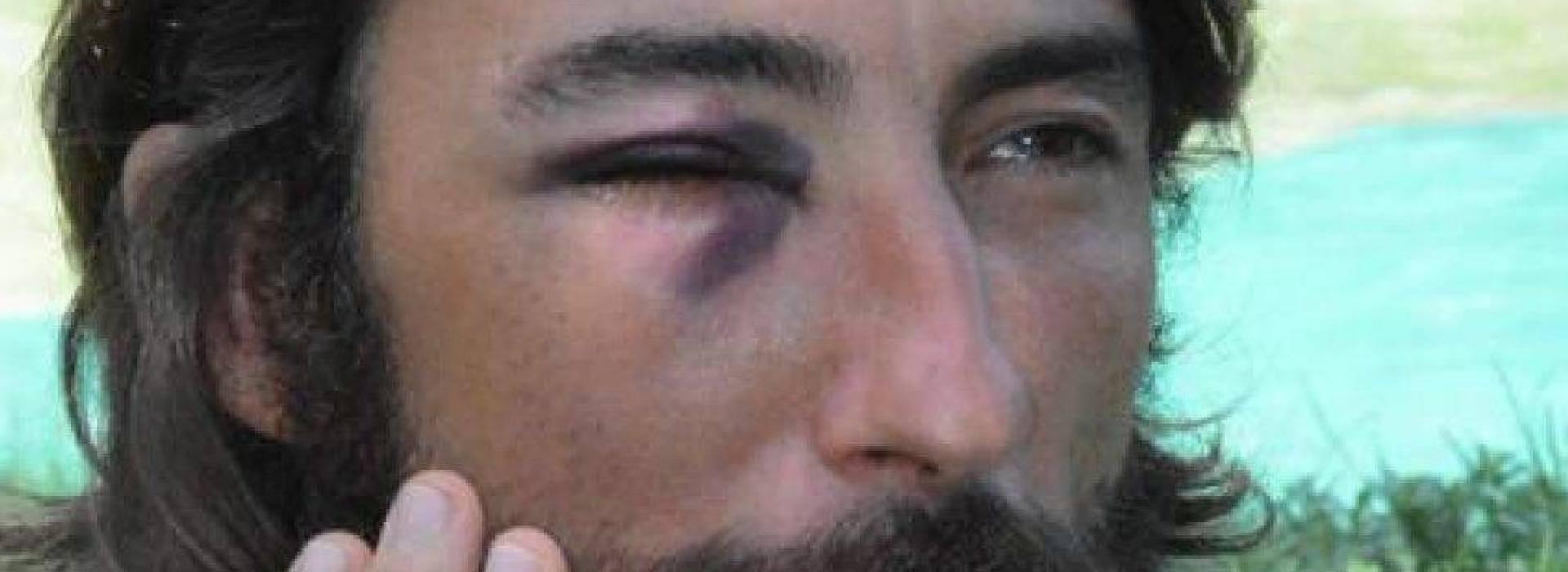 """Ex poliziotta critica Brumotti e Striscia risponde: """"vada lei nelle piazze di spaccio"""". La replica: """"ho perso un occhio in servizio"""""""